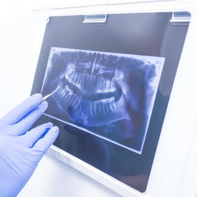 Hand in medical rubber gloves showing dental panoramic xray image.